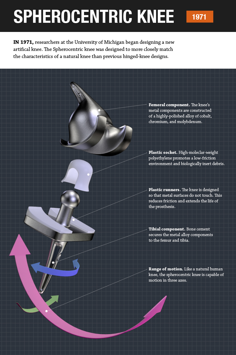 Poster infographic showing parts of the spherocentric knee.